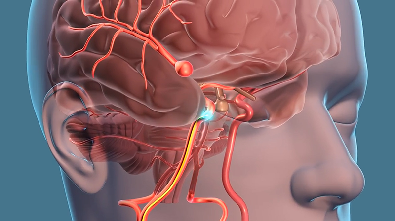 Dr  Andrew Grande Spreads Awareness on Brain Aneurysms
