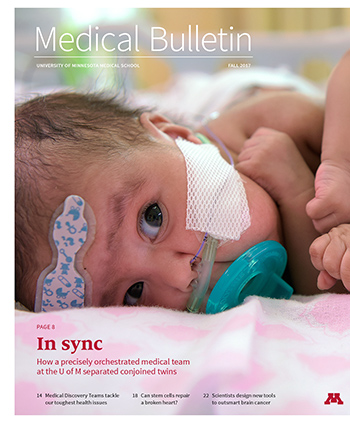 Medical Bulletin Cover for Fall 2017, Photo of conjoined twins