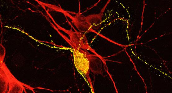 yellow neuron