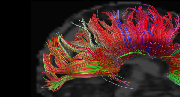 Image of a brain scan